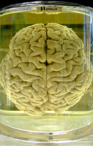 Human brain in formaldehyde